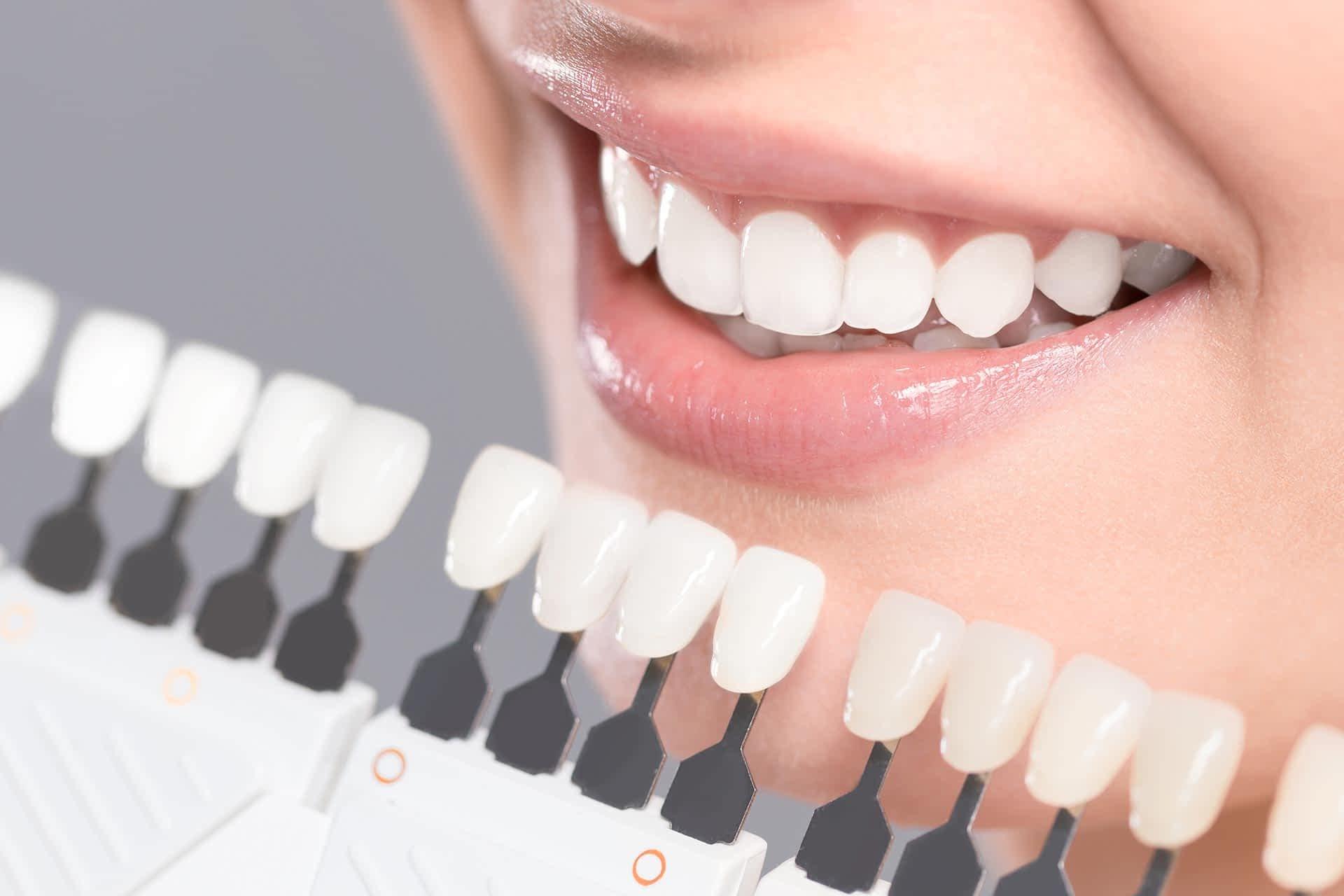 あかなへ゛歯科 審美歯科 ホワイトニンク゛