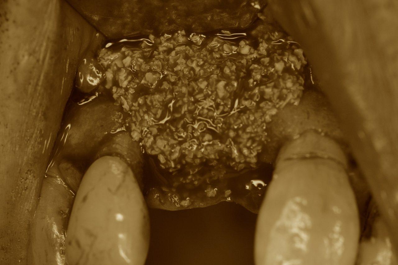 あかなべ歯科 インプラント