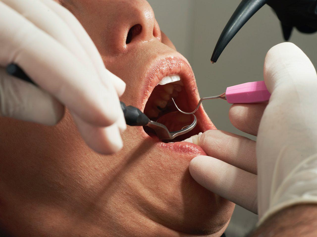 あかなべ歯科 一般歯科 むし歯の治療