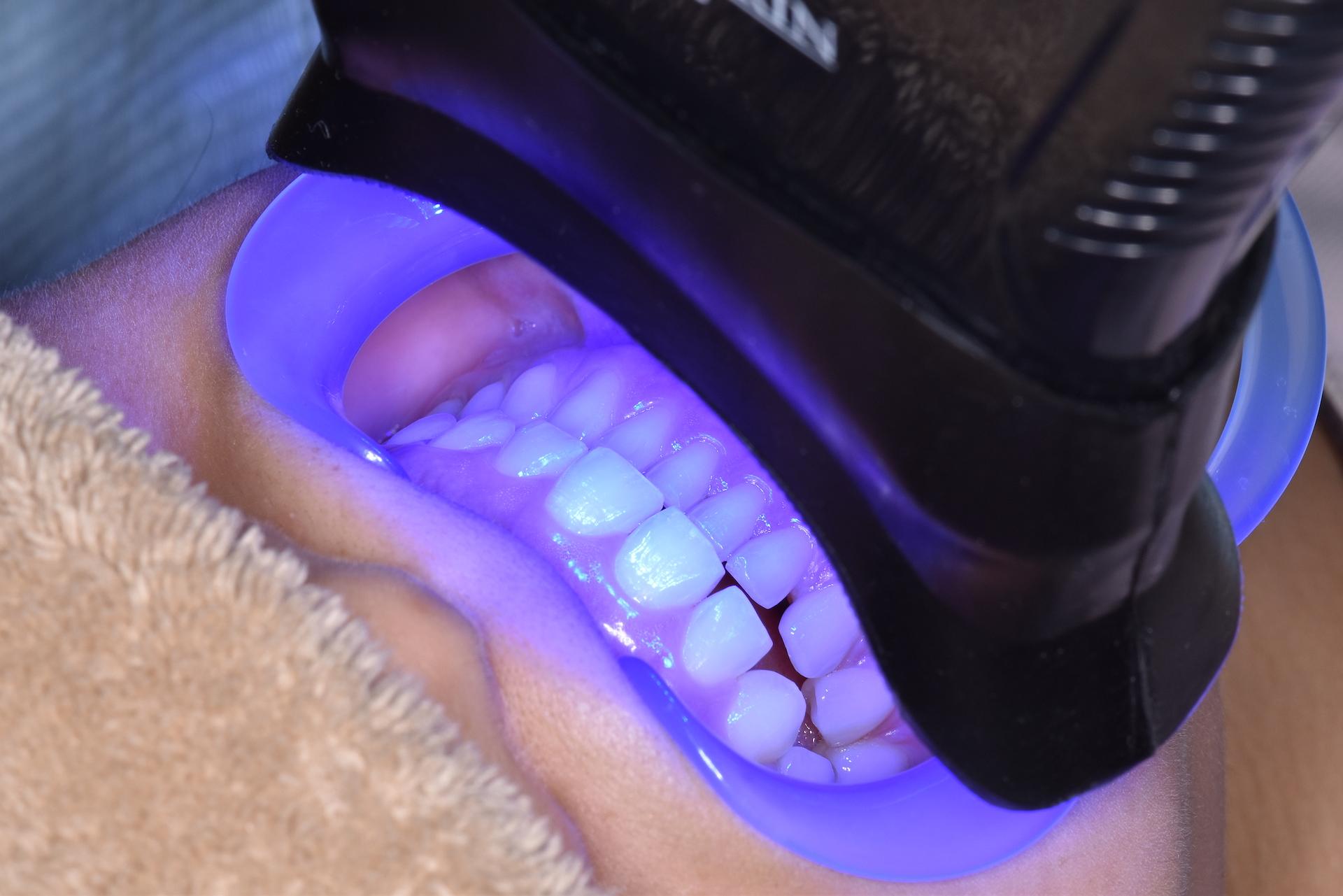 あかなべ歯科 ホワイトニング デンタルエステ