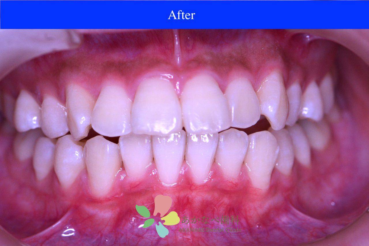 あかなべ歯科_ホワイトニング_20200912_術後