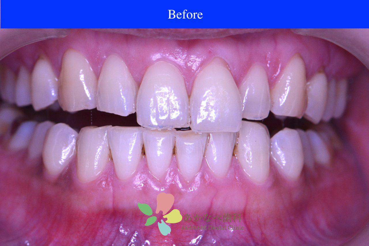 あかなべ歯科_ホワイトニング_20201224_術前