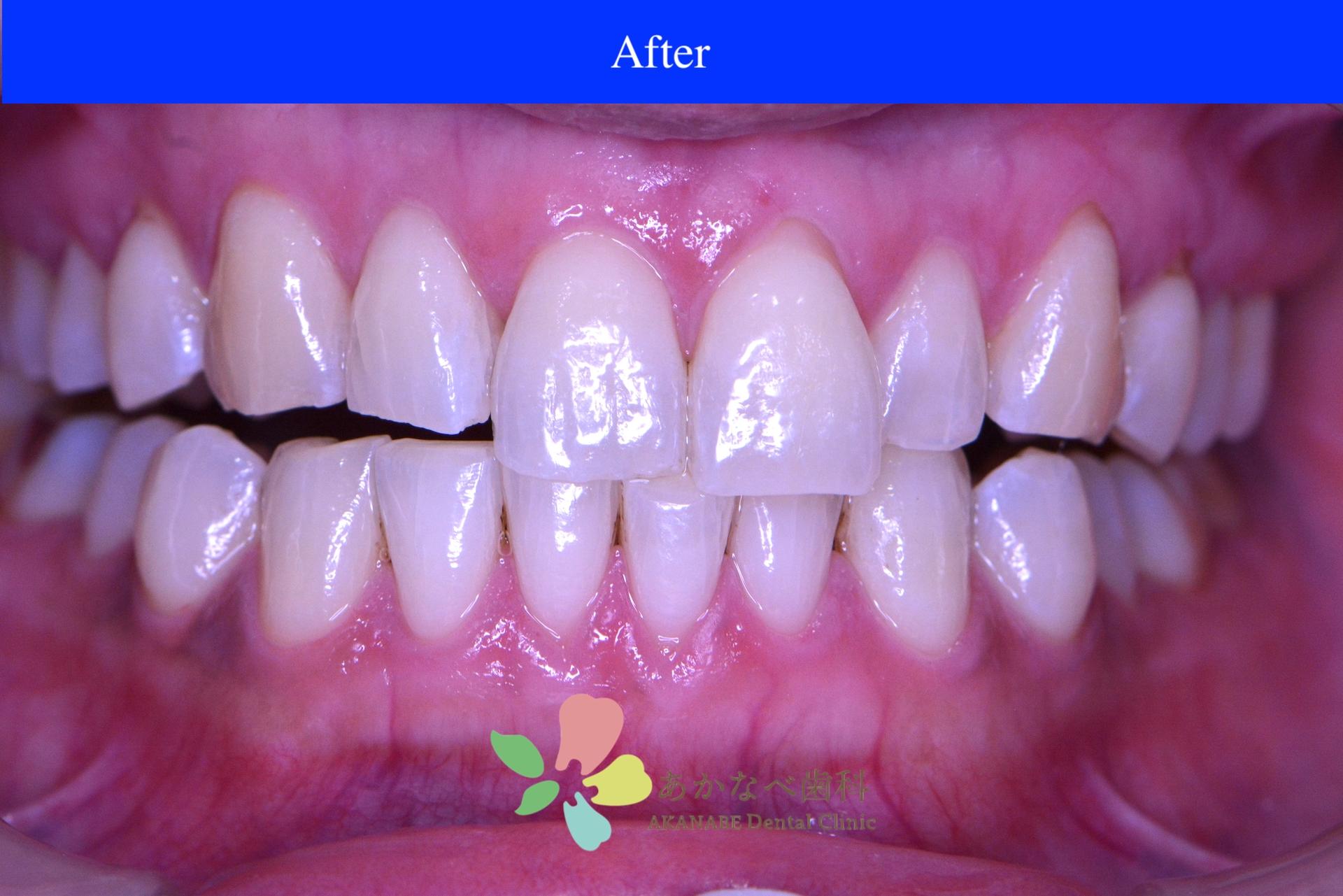 あかなべ歯科_ホワイトニング_20201224_術後