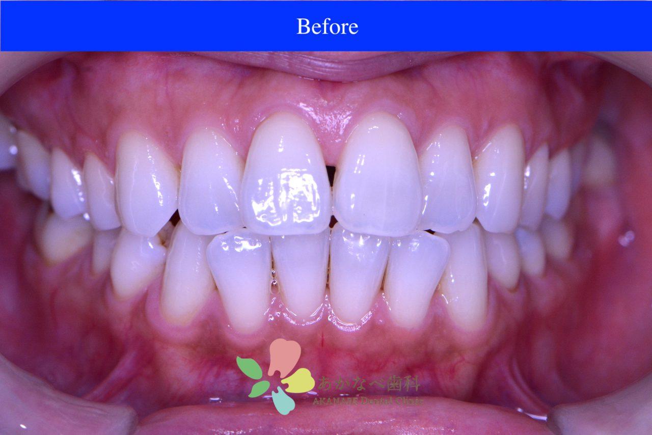 あかなべ歯科_ホワイトニング_20201225_術前