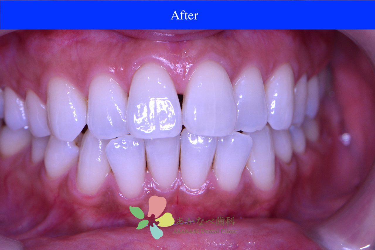 あかなべ歯科_ホワイトニング_20201225_術後