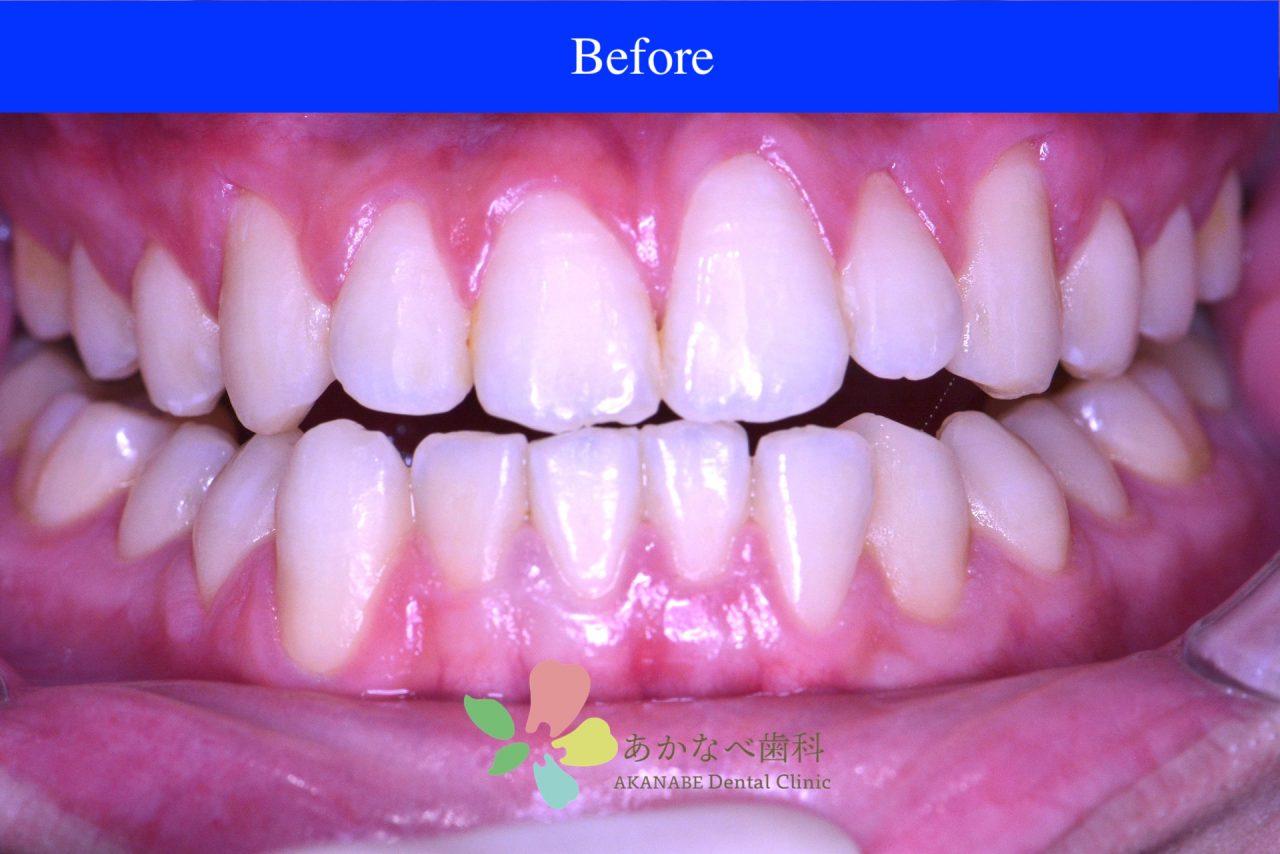 あかなべ歯科_ホワイトニング_20210109_術前