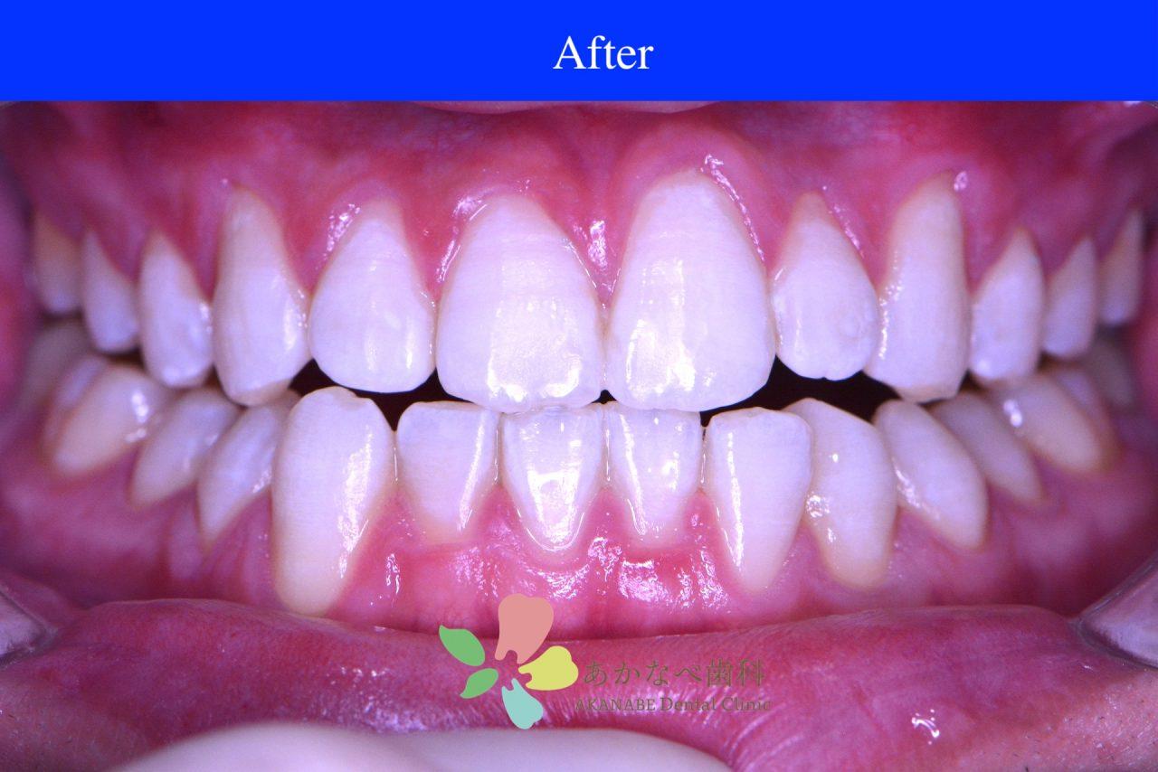 あかなべ歯科_ホワイトニング_20210109_術後