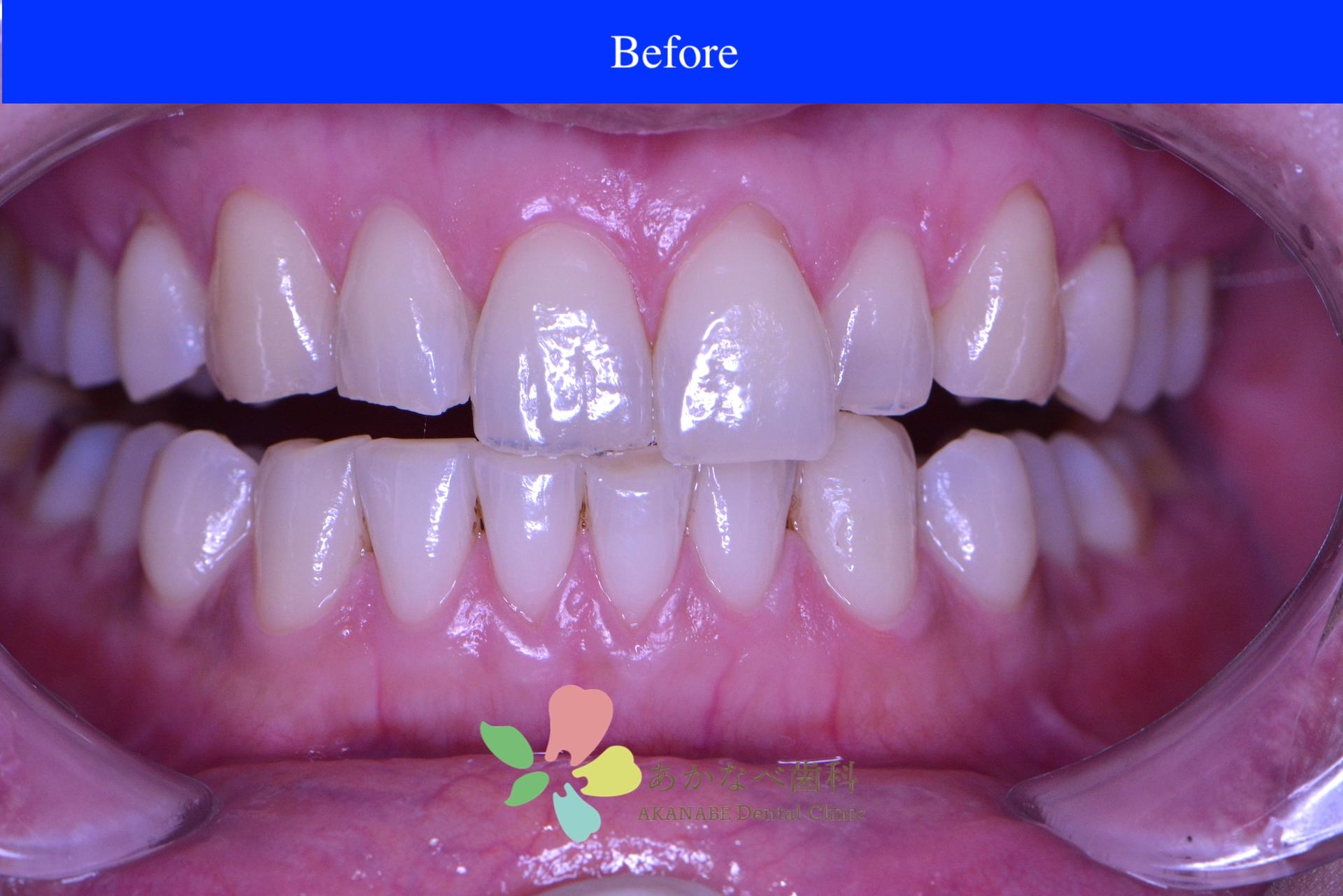 あかなべ歯科_ホワイトニング_20210114_術前