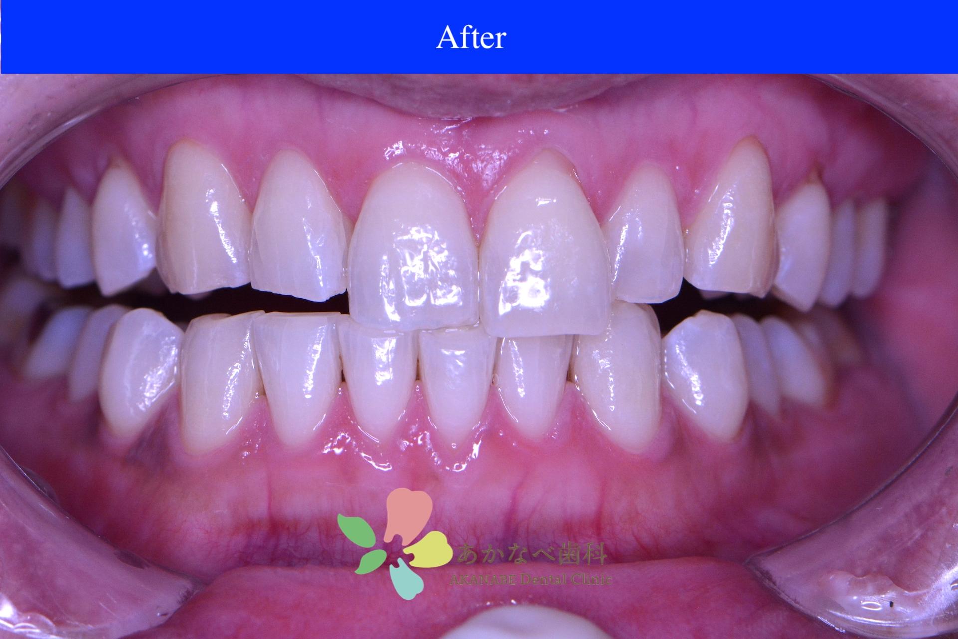 あかなべ歯科_ホワイトニング_20210114_術後