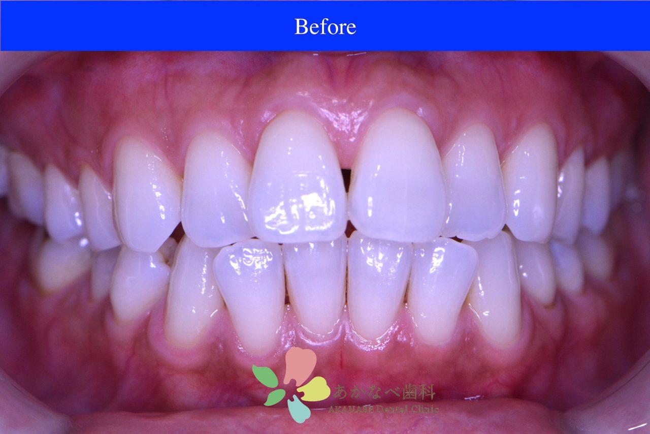 あかなべ歯科_ホワイトニング_20210115_術前