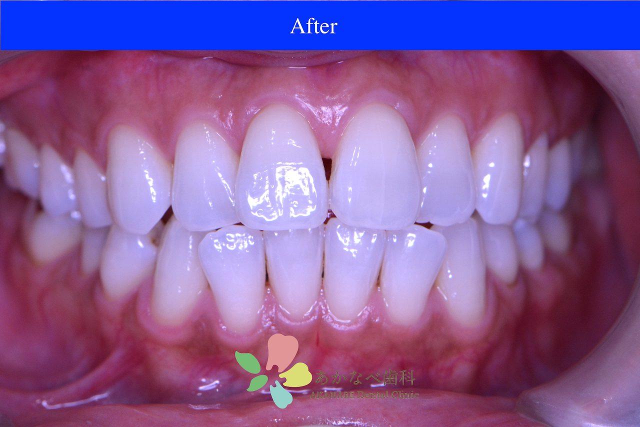 あかなべ歯科_ホワイトニング_20210115_術後