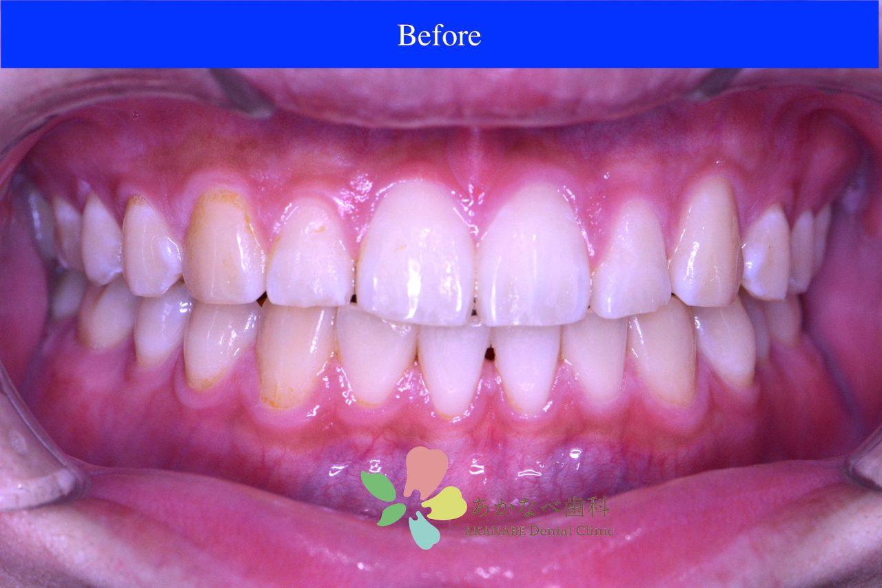 あかなべ歯科_ホワイトニング_20210115_1_術前