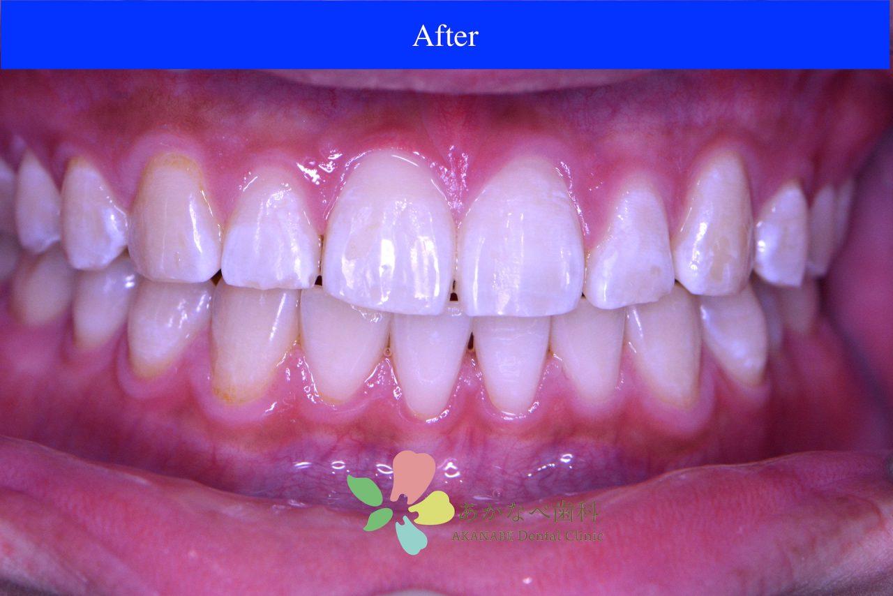あかなべ歯科_ホワイトニング_20210115_1_術後