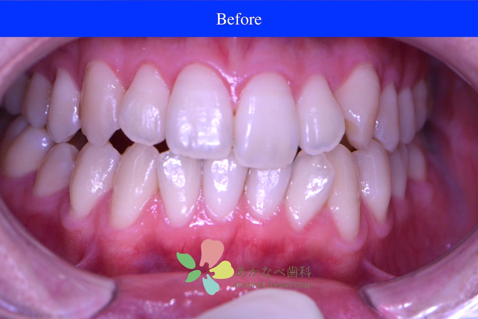 あかなべ歯科_ホワイトニング_20210116_術前
