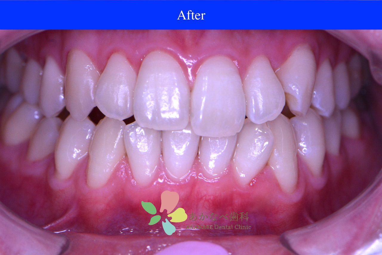 あかなべ歯科_ホワイトニング_20210116_術後