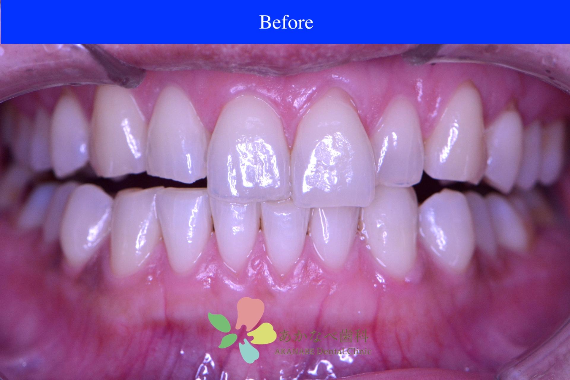 あかなべ歯科_ホワイトニング_20210121_術前