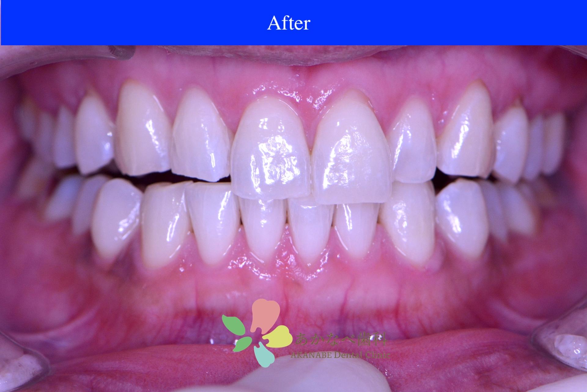 あかなべ歯科_ホワイトニング_20210121_術後