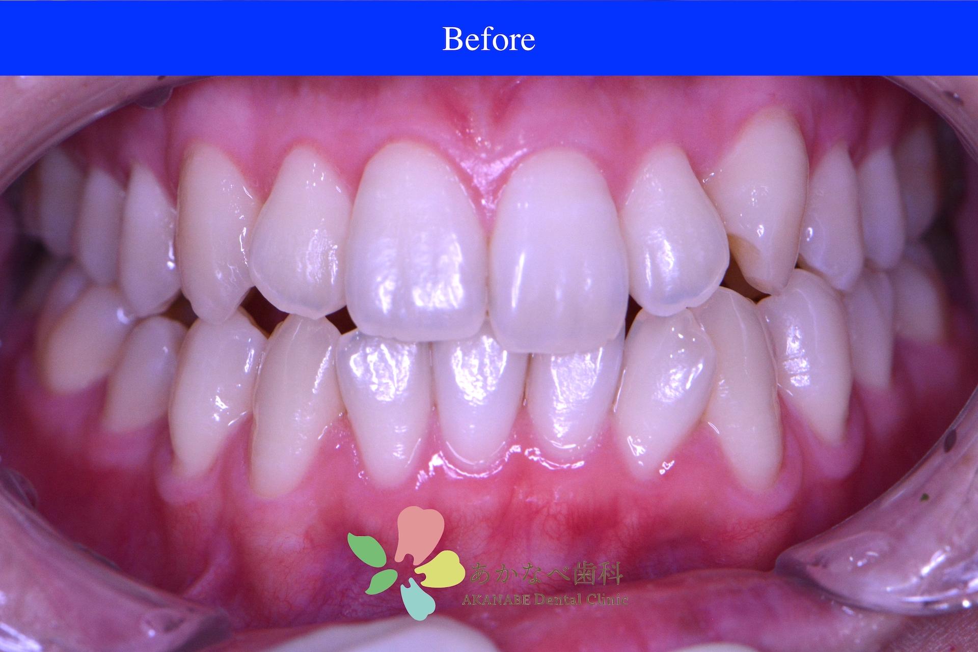 あかなべ歯科_ホワイトニング_20210125_術前