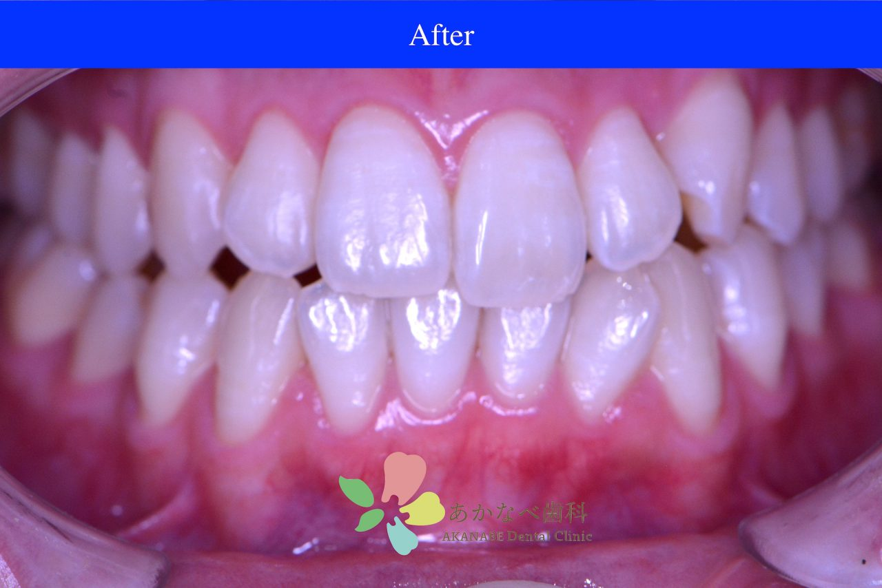 あかなべ歯科_ホワイトニング_20210125_術後