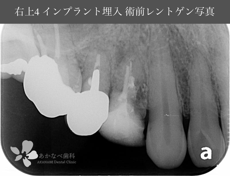 あかなべ歯科_右上4インプラント埋入_20210315_術前レントゲン写真