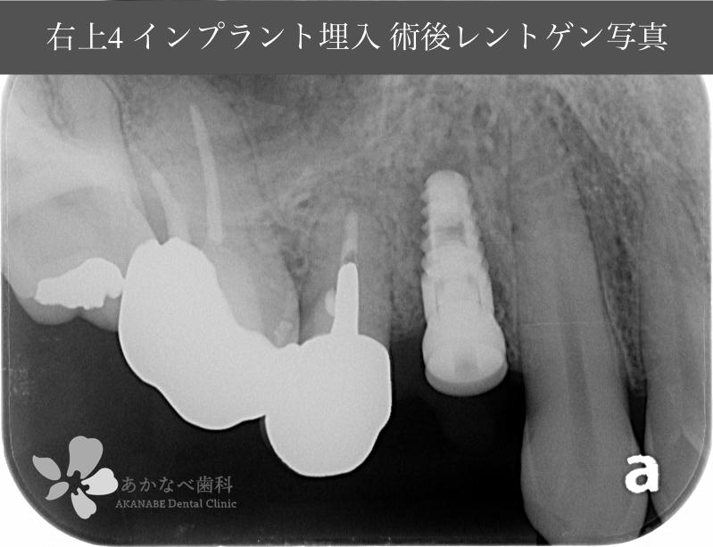 あかなべ歯科_右上4インプラント埋入_20210315_術後レントゲン写真