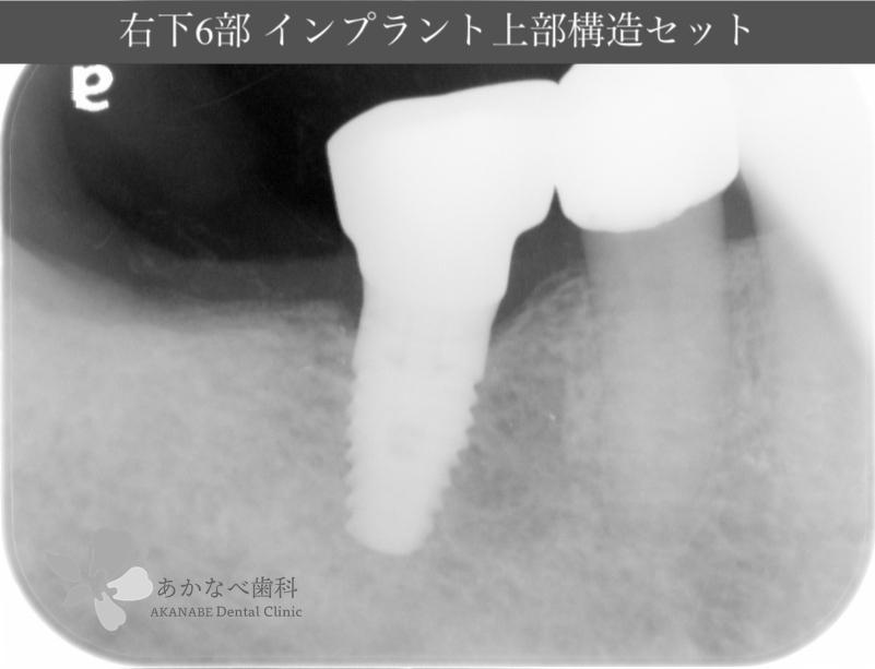 あかなべ歯科_右下6インプラント上部構造セット_20200609_術後レントゲン写真