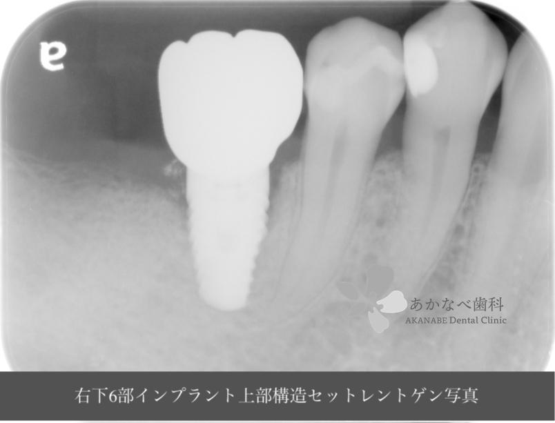 あかなべ歯科_右下6インプラント上部構造セット_20200912_術後レントゲン写真