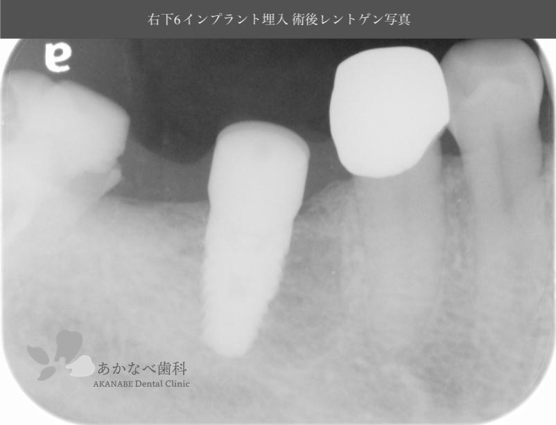 あかなべ歯科_右下6インプラント埋入_20200311_術後レントゲン写真