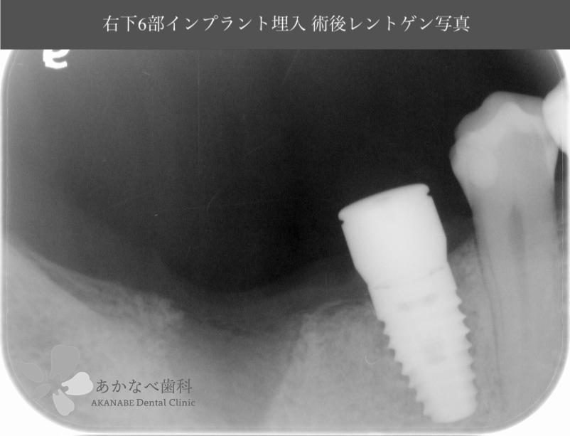 あかなべ歯科_右下6インプラント埋入_20200711_術後レントゲン写真