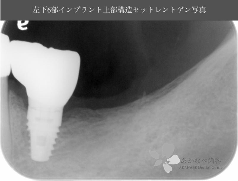 あかなべ歯科_左下6インプラント上部構造セット_20200627_術後レントゲン写真