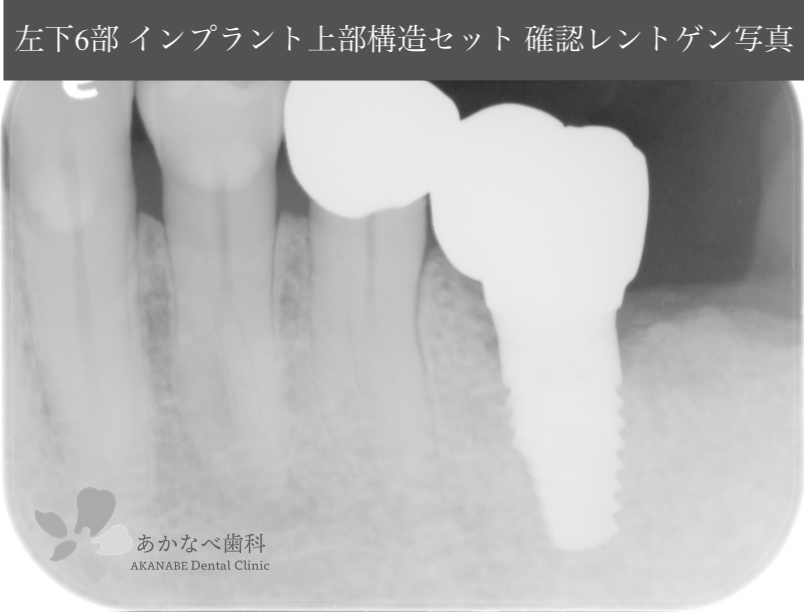 あかなべ歯科_左下6インプラント上部構造セット_20200910_術後レントゲン写真