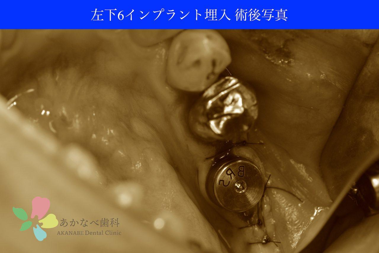 あかなべ歯科_左下6インプラント埋入_20200425_術後写真
