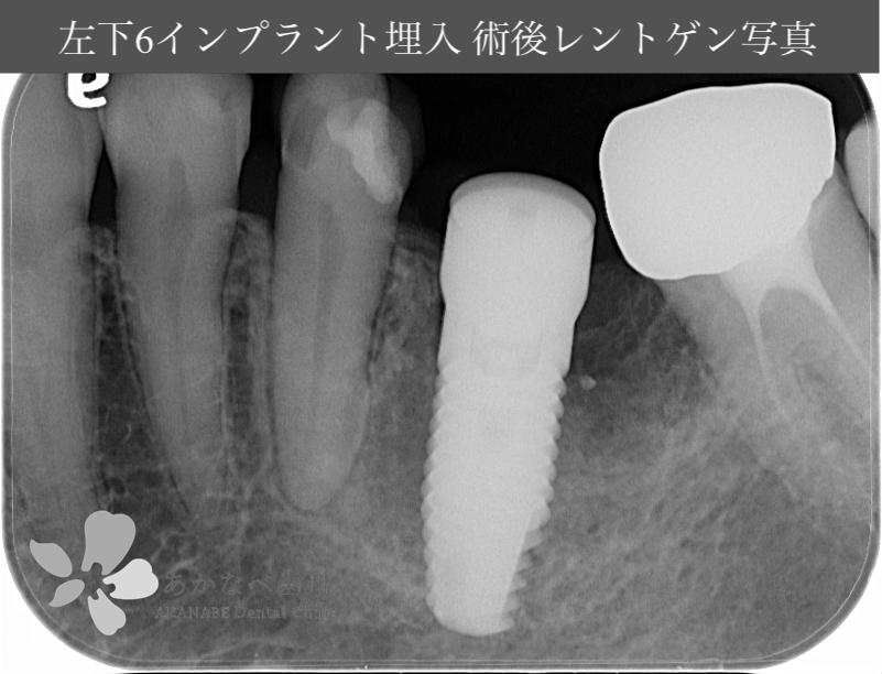 あかなべ歯科_左下6インプラント埋入_20201002_術後レントゲン写真