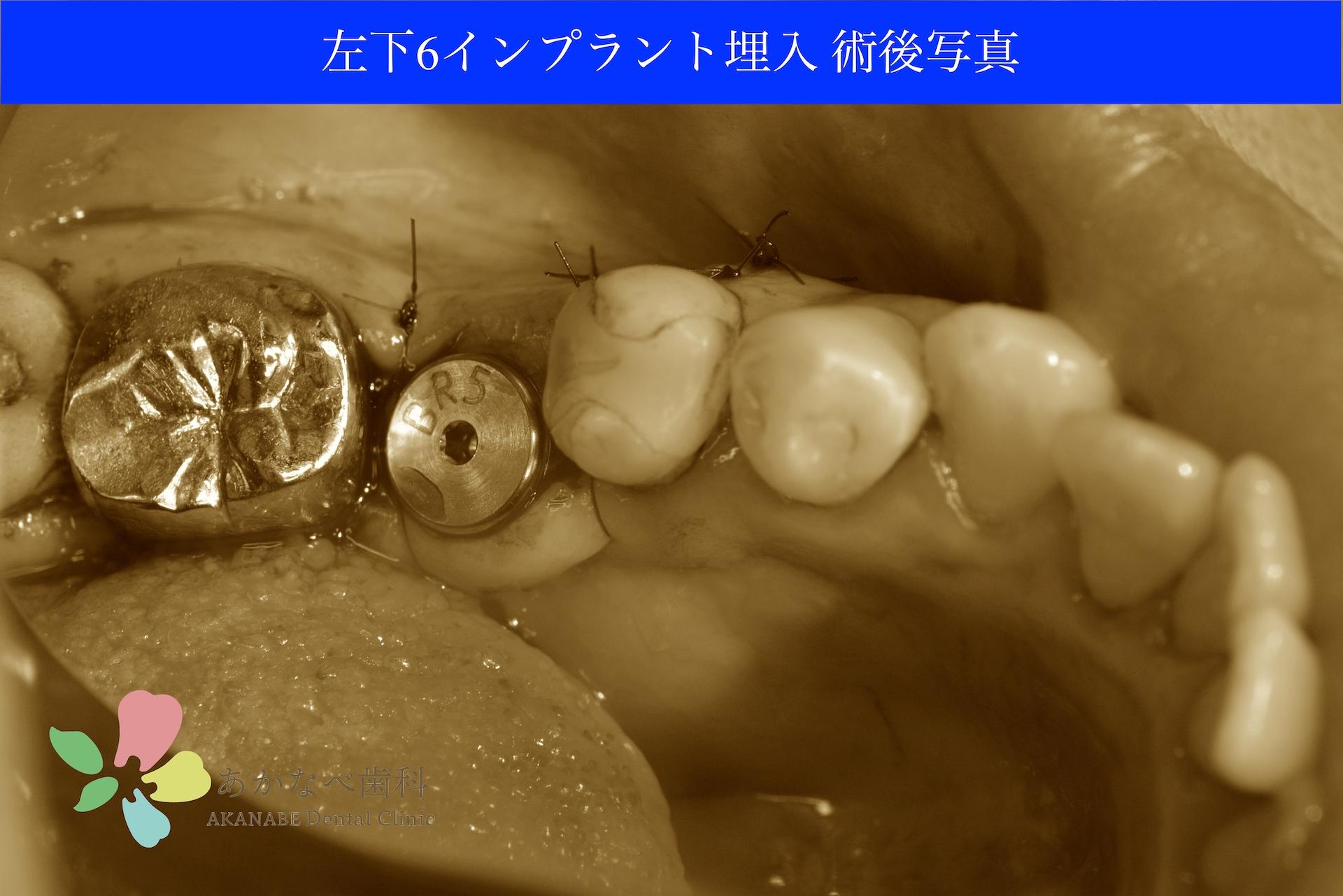 あかなべ歯科_左下6インプラント埋入_20201002_術後写真