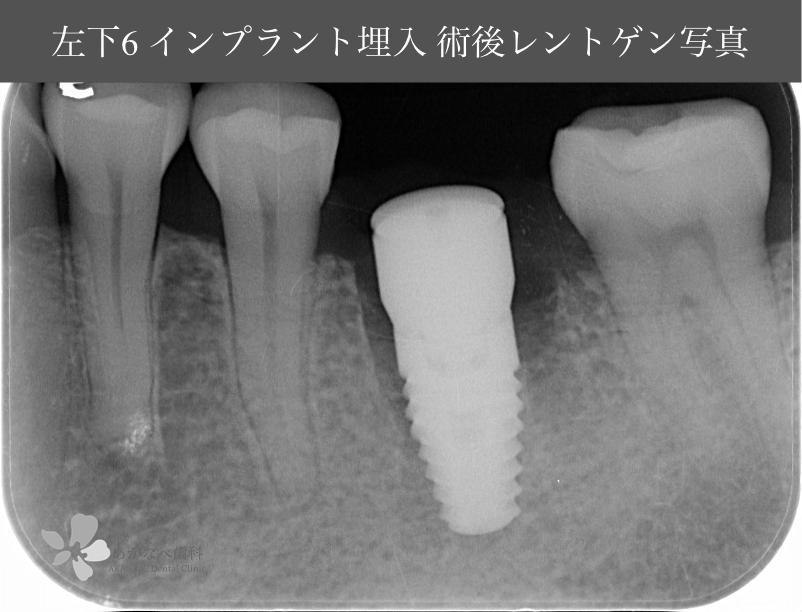 あかなべ歯科_左右下顎6同時インプラント埋入_20210309_術後レントゲン写真_1