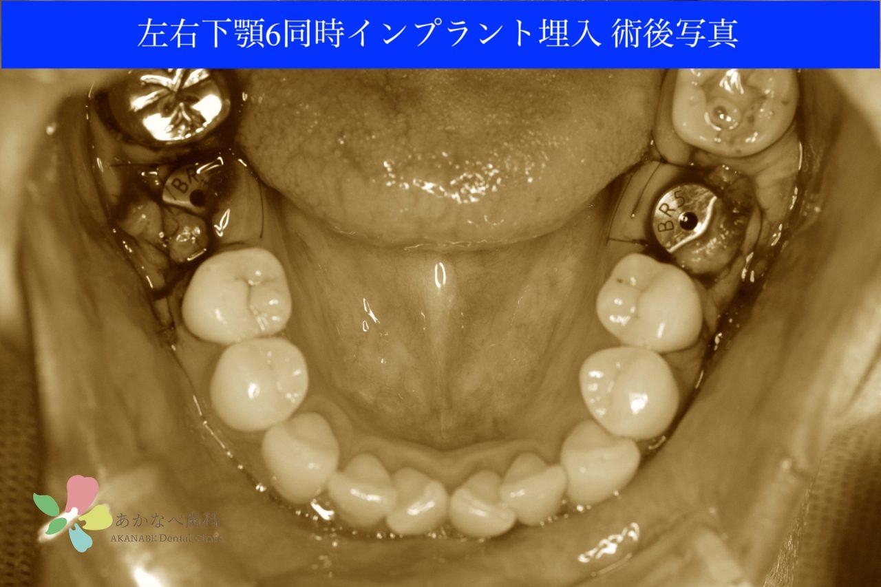 あかなべ歯科_左右下顎6同時インプラント埋入_20210309_術後写真