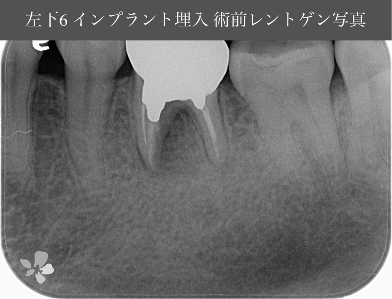 あかなべ歯科_左右下顎6同時_インプラント埋入_20210309_術前レントゲン写真_1