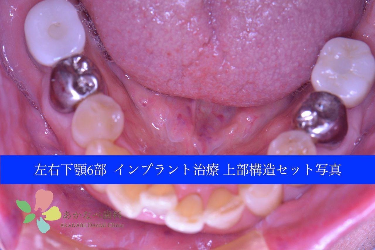 あかなべ歯科_左右下6インプラント上部構造セット_20200910_術後写真