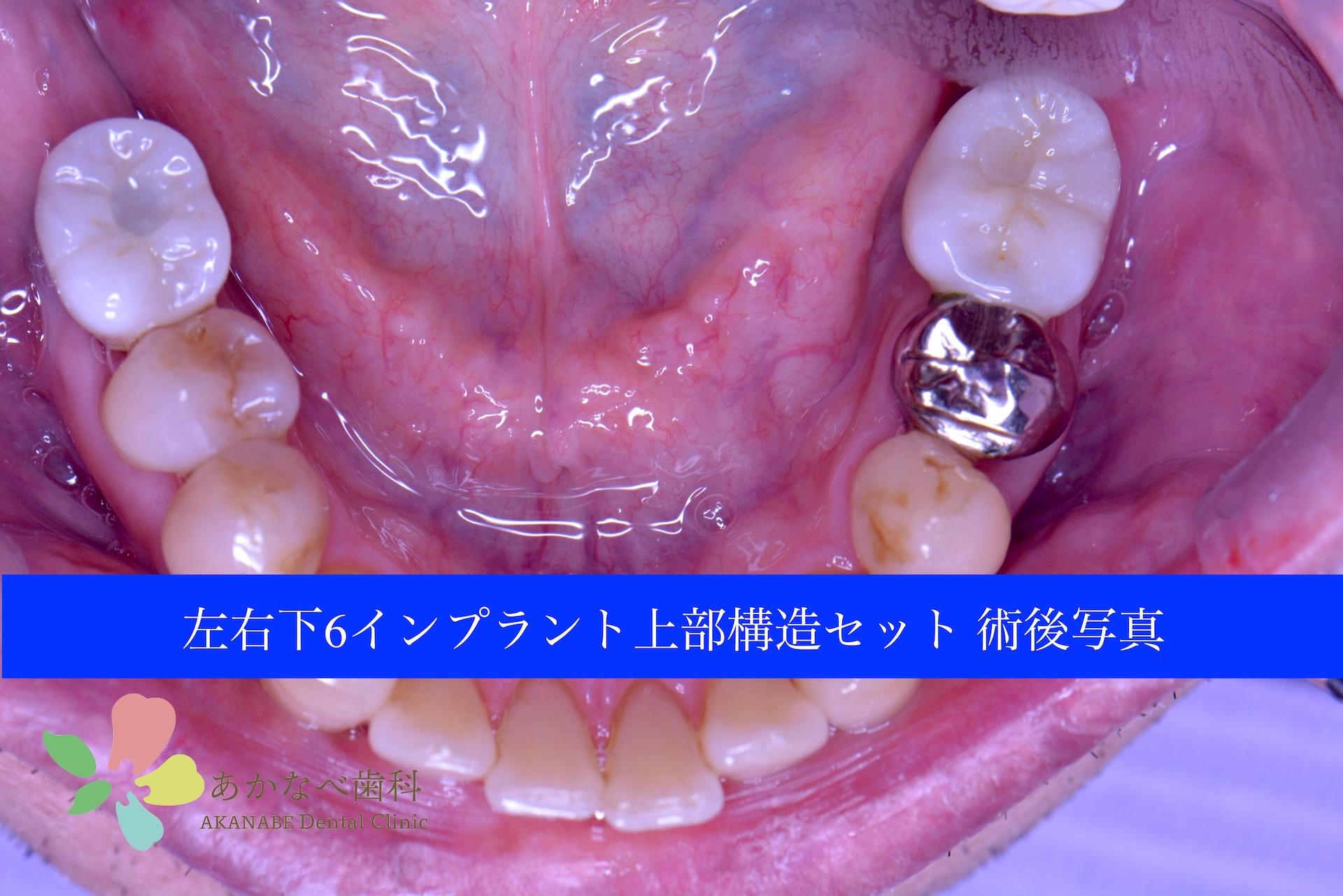 あかなべ歯科_左右下6インプラント上部構造セット_20200912_術後写真_1