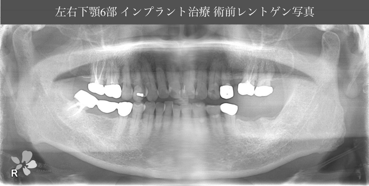 あかなべ歯科_左右下6インプラント埋入_20200311_術前レントゲン写真