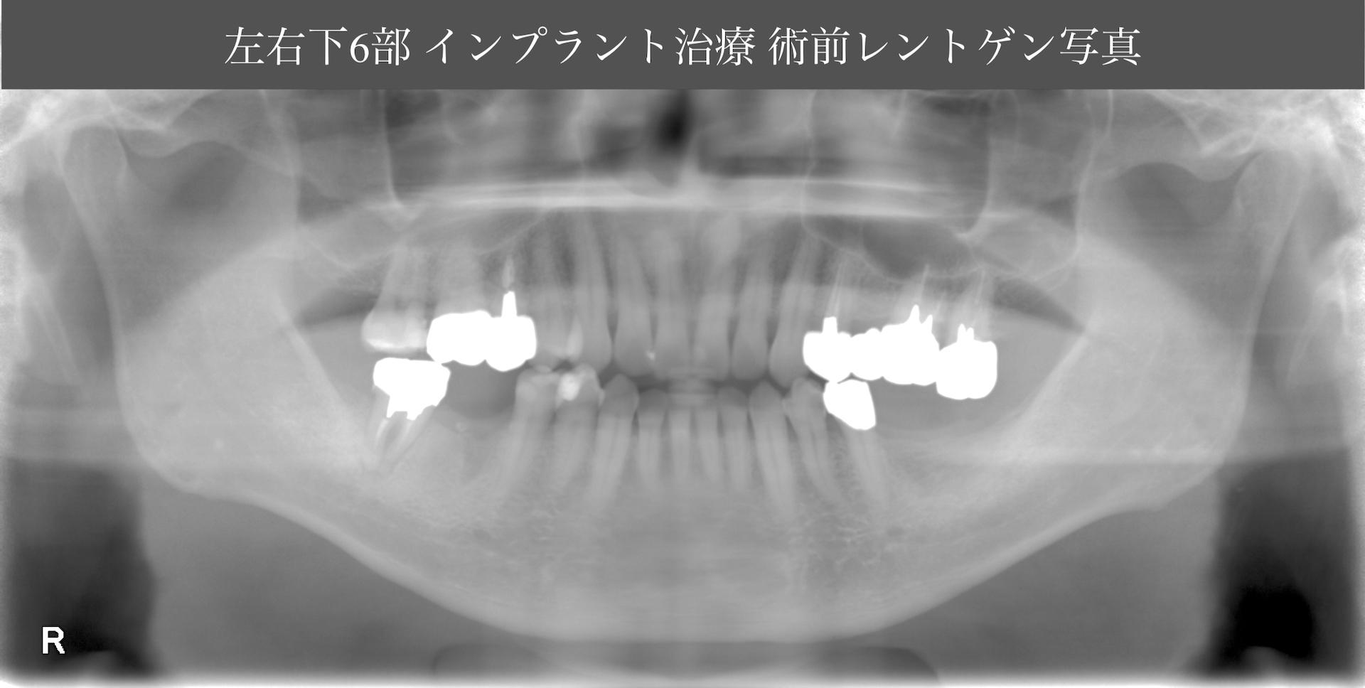 あかなべ歯科_左右下6インプラント埋入_20200425_術前レントゲン写真
